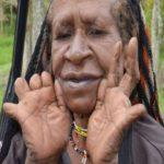 दर्दनाक परम्परा- शोक-संवेदना दिखाने के लिए काटी जाती है कुल्हाड़ी से महिलाओं की अंगुलिया