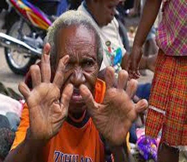 Dani tribe finger cutting parmpara