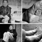 लोटस फीट- चीन की एक क्रूर परंपरा जिसमे खूबसूरती के लिए ऐसा बना दिया जाता था महिलाओं का पैर