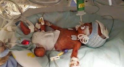 brave-baby-survive-4_1435