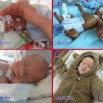 मिरेकल- मात्र 4 महीने में जन्मा था ये बच्चा, मुश्किल से बची जान, अब है बिल्कुल स्वस्थ्य