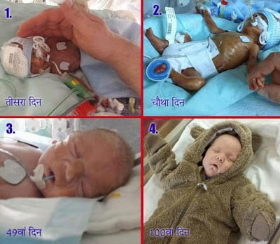 Miracle- Story of 4 month premature baby in Hindi