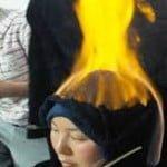 फायर थेरेपी (Fire Therapy) – शरीर को आग लगाकर करते है बिमारियों का इलाज