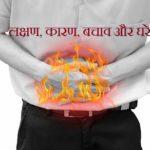 एसिडिटी – लक्षण, कारण, बचाव और घरेलु उपाय